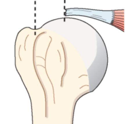 Fig 3 : Rupture transfixiante de la coiffe