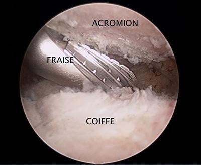Fig 2: acromioplastie à la fraise motorisée»