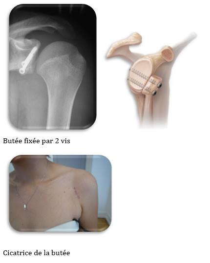 Fig 5 : Stabilisation avec une butée coracoidienne