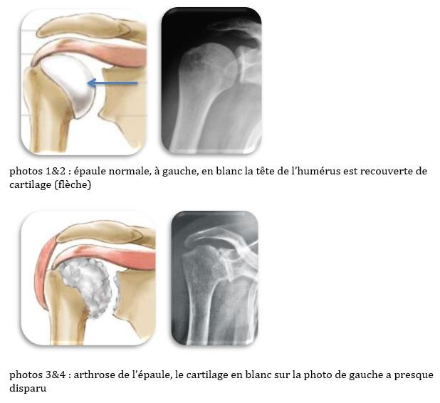 Fig1. - Arthrose d'épaule