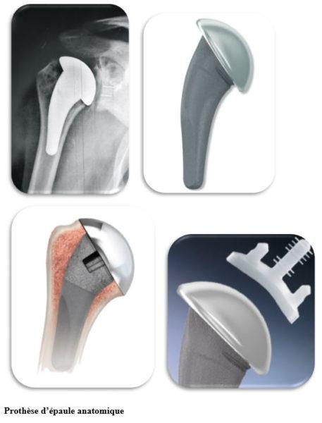 Fig 3: prothèse d'épaule anatomique