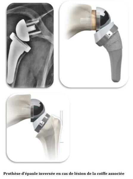 Fig 4: la prothèse d'épaule inversée