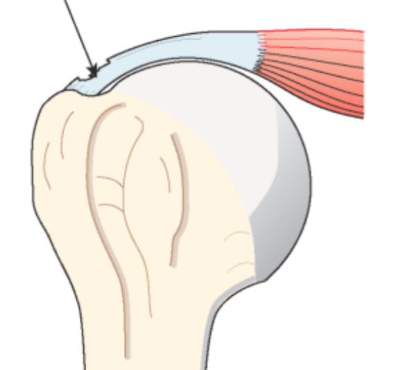 Fig 2 : Rupture partielle de la coiffe