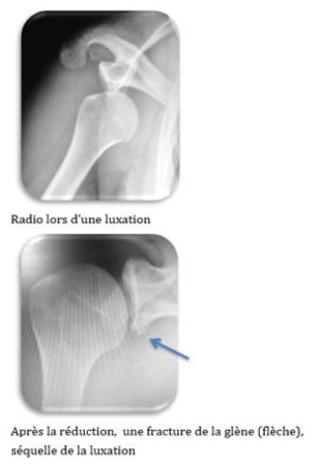 Fig 2 : lésions osseuses visibles à la radiographie