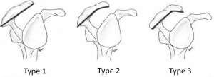 Fig 1: acromion «agressif»