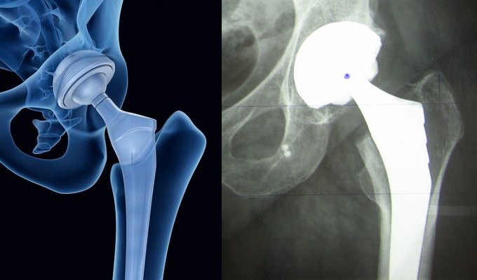 Fig2: Prothèse Totale de Hanche en vue 3D (gauche) et sur une radiographique (droite)