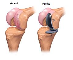 Fig1. - prothèse partielle ou unicompartimentale