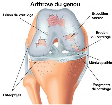 Fig 1: arthrose du genou (ou gonarthrose)