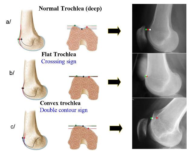 Fig 2: Dysplasie de la trochlée du fémur: a/ trochlée normale (suffisamment creusée) b/ dysplasie avec trochlée «plate» c/ trochlée convexe