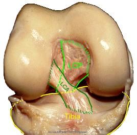 Fig 1: Le ligament croisé antérieur (LCA) et le ligament croisé postérieur (LCP)