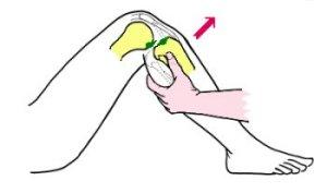 Fig 2: Déplacement du tibia vers l'avant en cas de rupture du LCA