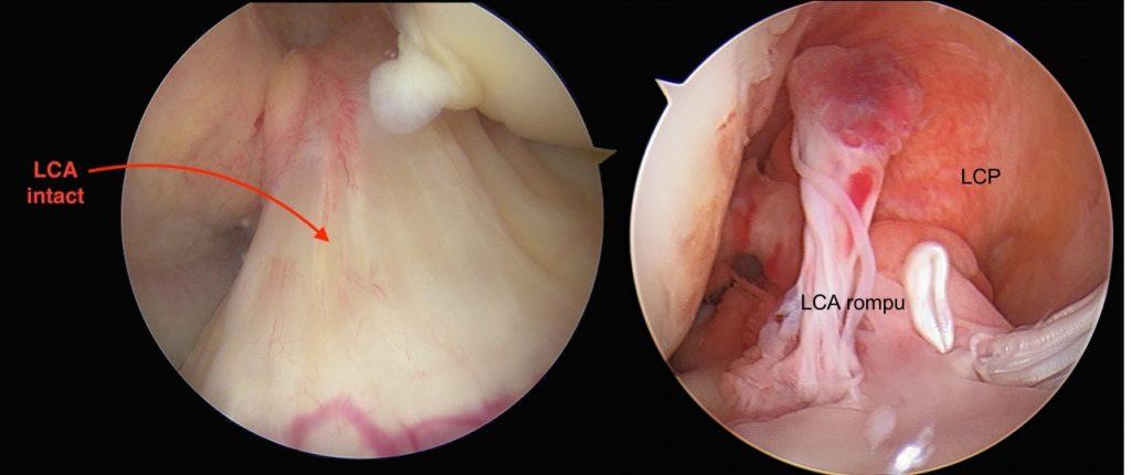 Fig 4: LCA normal (gauche)/ LCA rompu (droite) en vue arthroscopique (caméra)