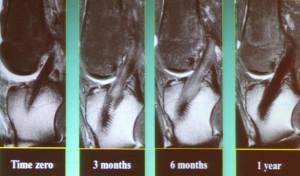 Fig 9: suivi IRM d'une reconstruction de LCA