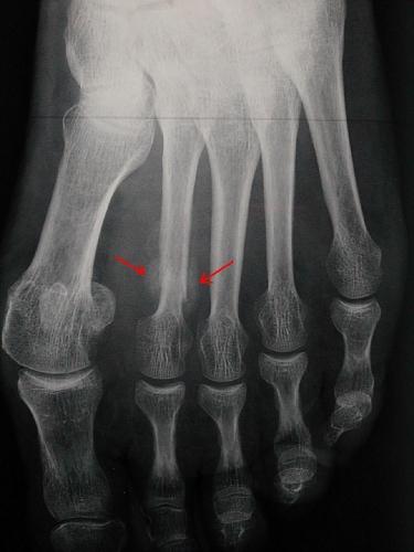 Fig 1: Radiographie d'une fracture de fatigue du 2ème métatarsien