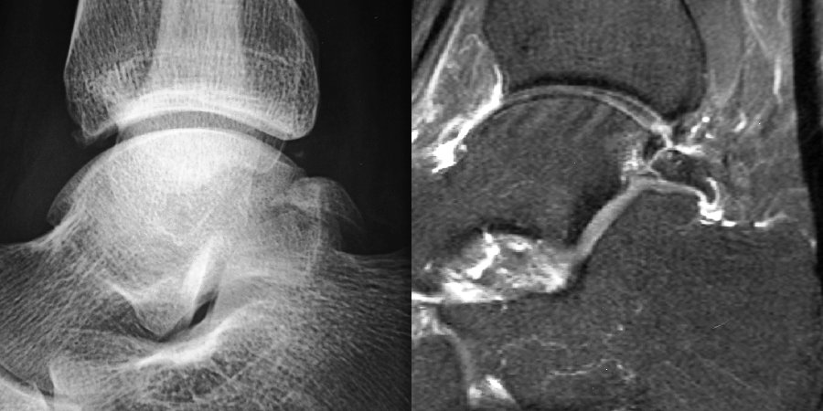Fig 4: Imagerie d'une fracture postérieure de l'astragale