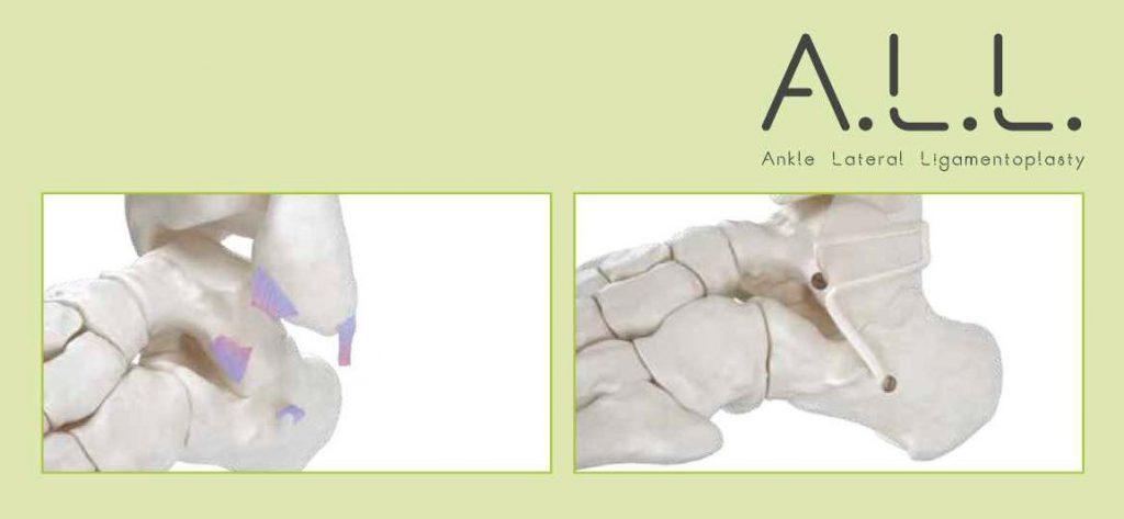 Fig 1: Schéma d'une ligamentoplastie de cheville