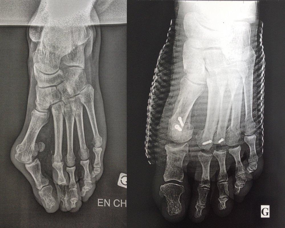 Fig 4: radiographies, à gauche d'un hallux valgus avant chirurgie, à droite correction après chirurgie