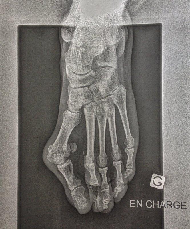 Fig 1: Radiographie d'un hallux valgus
