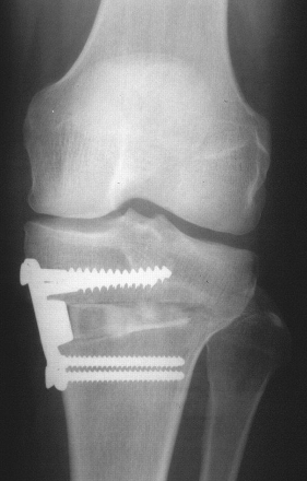 Fig 2 : Radiographie d'une ostéotomie tibiale de valgisation