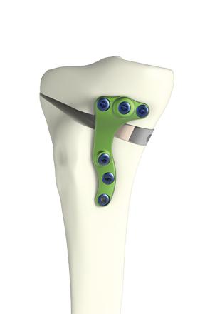 Fig 3 : plaque vissée maintenant l'ostéotomie